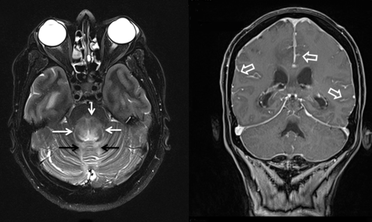 <strong>Figure 2.</strong> A) T2 weighted axial image showed hyperintensity of posterior pons (white arrows) and also cerebellar vermis (black arrows); B) Sagittal plane T1 weighted image demonstrated pial and arachnoid enhancement (open arrows)