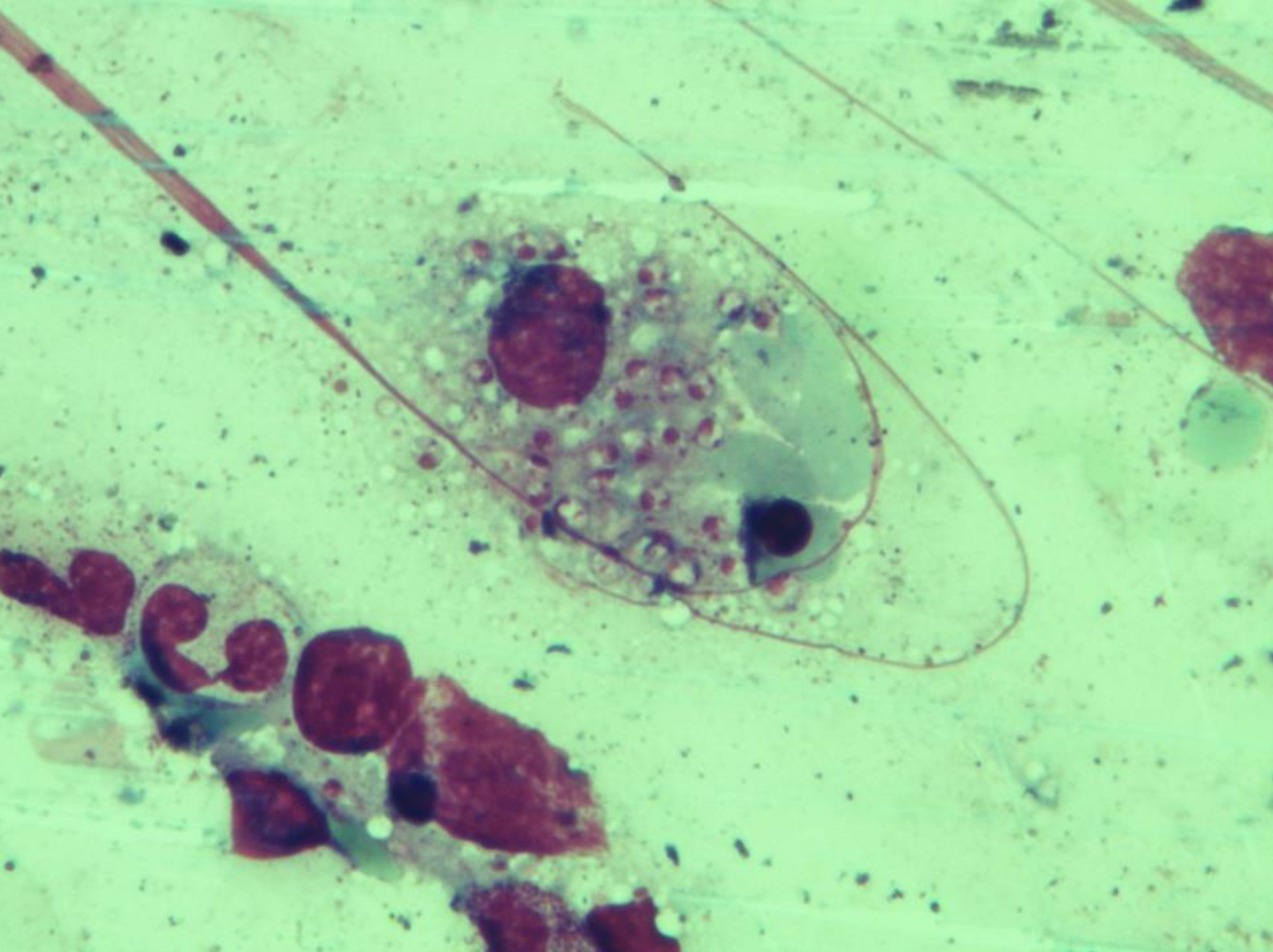 <strong>Figure 1.</strong> Patient 4: Bone marrow aspirate reveals macrophages with numerous nuclei of intracellular amastigotes of <i>Leishmania</i> parasites (Giemsa stain, 1000X).