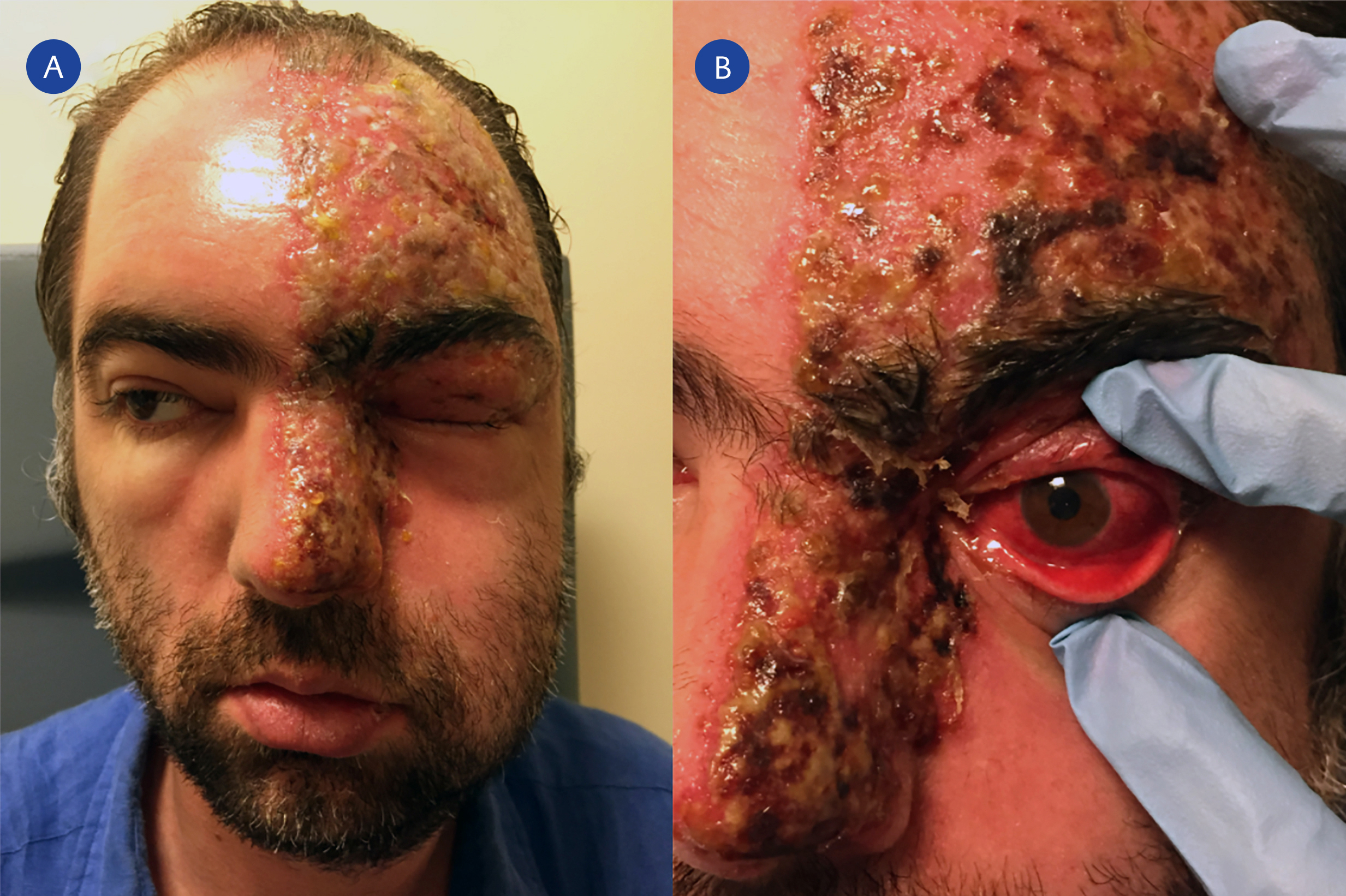 <b>Figure 1.</b> Facial photograph of the patient at presentation shows severe facial edema and drooping and vesiculopustular lesions on frontal and scalp skin, upper eyelid, medial canthus, and root, side and tip of nose on the left side of his face (A). Lesions do not cross the midline. Crusting of the vesicular skin lesions and severe diffuse anterior scleritis is seen in the left eye 2 days after treatment (B).
