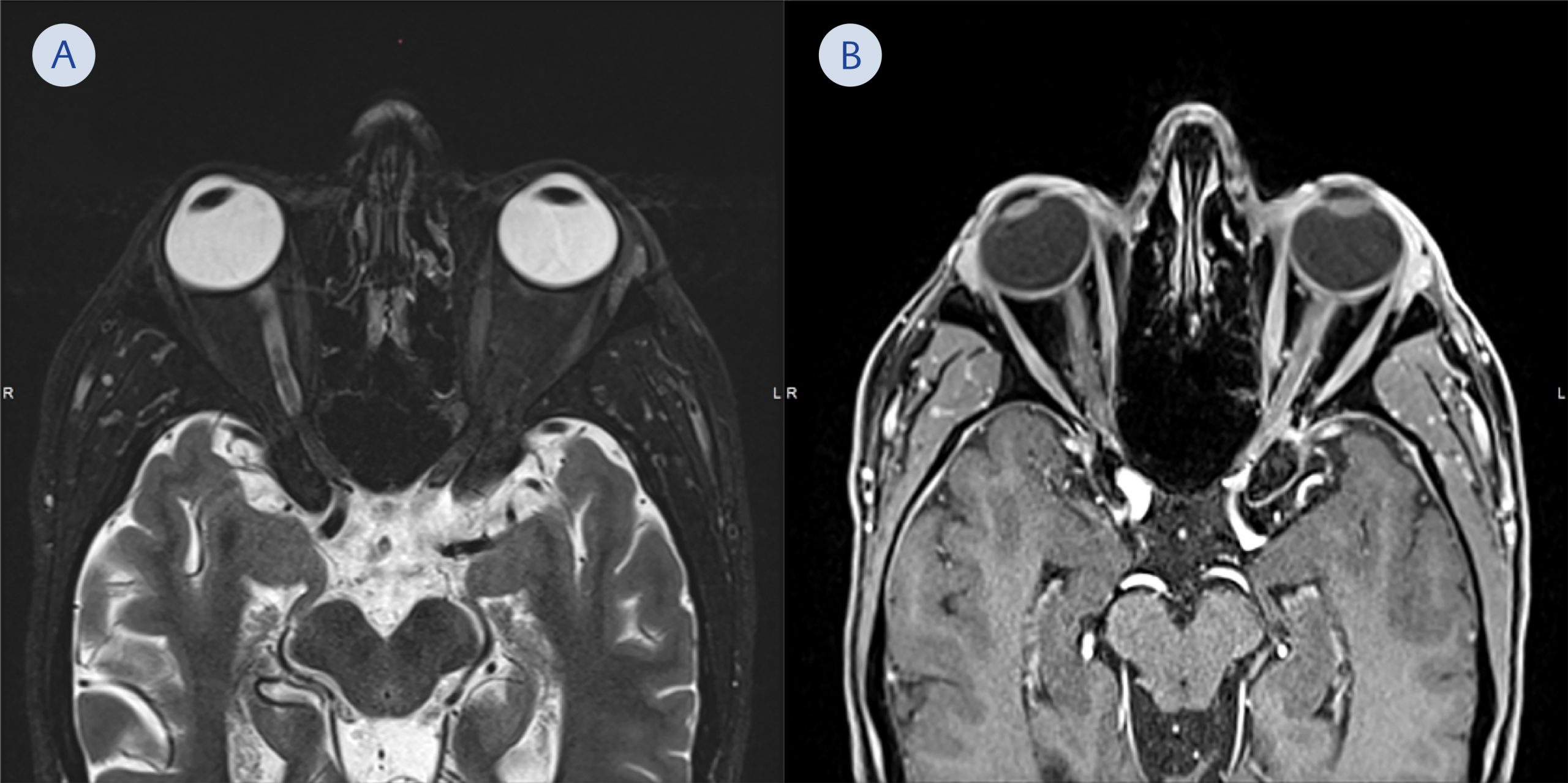 <b>Figure 3.</b> Axial magnetic resonance images of the patient taken 12 days after presentation. T2 weighted image shows swelling and edema of the extraocular muscles and optic nerve on the left side. There is no cerebrospinal fluid visible along the optic nerve tract on the left side when compared to the optic nerve tract on the right side (A). Post-contrast T1 weighted fat suppressed image shows enhancement of the extraocular muscles and the optic nerve sheath especially near the orbital apex. A subtle contrast enhancement is also seen within the bony orbital apex (B).