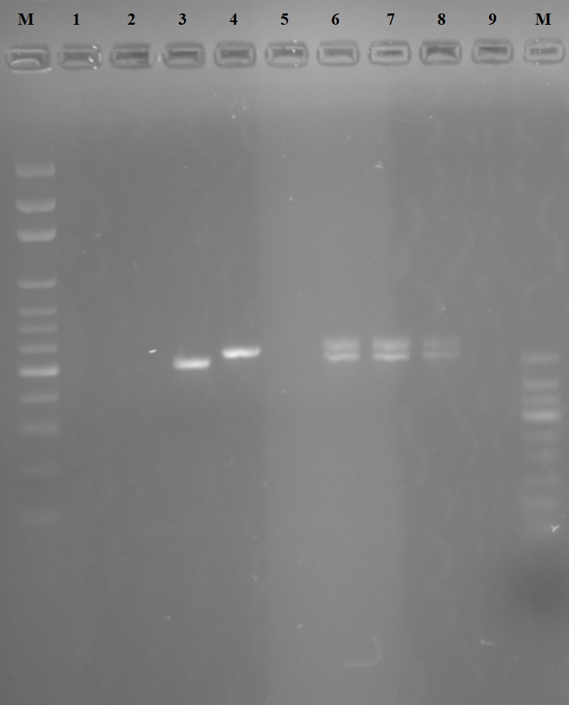 """<strong>Figure 3.</strong> Gel image of the cpb gene region PCR. M. 100 bp Marker<br /> 1. Reference <i>L. tropica</i> (MHOM/AZ/1974/SAF-K27)<<br /> 2. Reference <i>L. major </i>(MHOM/SU/1973/5ASKH)<br /> 3. Reference <i>L. infantum </i>(MHOM/TN/1980/IPT1)<br /> 4. Reference <i>L. donovani </i>(MHOM/IN/1980/DD8)<br /> 5. Reference <i>L. aethopica</i> (MHOM/ET/1972/L100)<br /> 6. Sample 1 <i>L. infantum/donovani </i>hybrid (human)<br /> 7. Sample 2 <i>L. infantum/donovani </i>hybrid (dog)<br /> 8. Sample 3 <i>L. infantum/donovani </i>hybrid (phelobotomus)<br /> 9. Negative Control<br /> 10. 50 bp Marker""""<br />"""