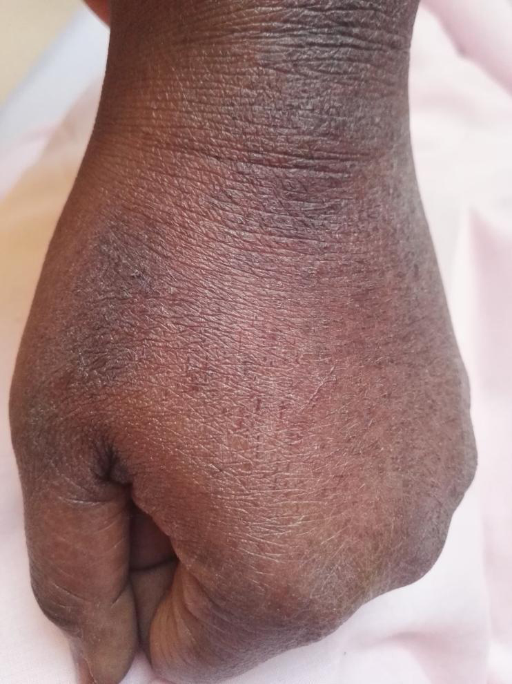 <strong>Figure 2.</strong> Severe xerosis of the dorsum of the hand of a pharmacist